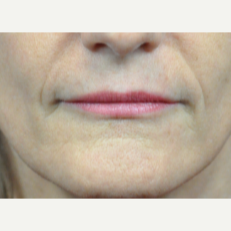 45-54 year old woman treated with Botox after 3776371