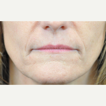 45-54 year old woman treated with Botox before 3776371