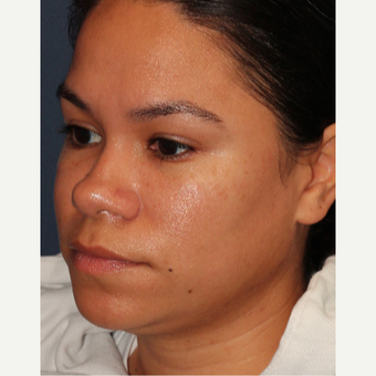 18-24 year old woman treated with Laser Treatment after 3137118