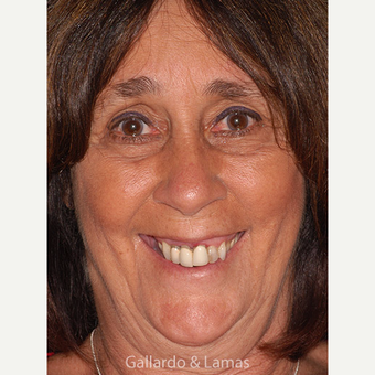 55-64 year old woman treated with All-on-4 Dental Implants before 3265878