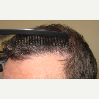"35-44 year old man Hair Transplant Revision. Naturalizing the ""old plugs"" look after 3175550"