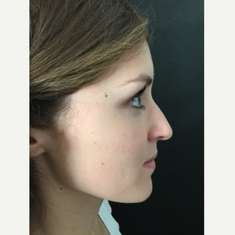 25-34 year old woman treated with Rhinoplasty before 3579176