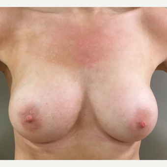 25-34 year old woman treated with Breast Augmentation after 3142624