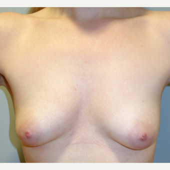 25-34 year old woman treated with Breast Augmentation before 3142624