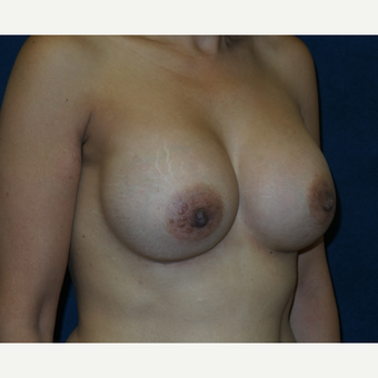 45-54 year old woman treated with Breast Augmentation after 3454901