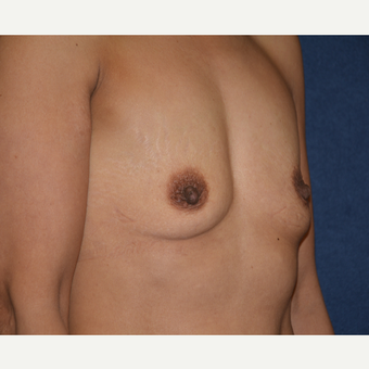 45-54 year old woman treated with Breast Augmentation before 3454901