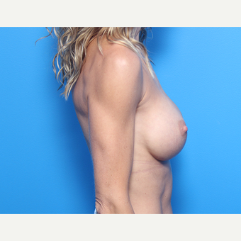 41 year old woman, Allergan Inspira Implants for Breast Augmentation after 3049948