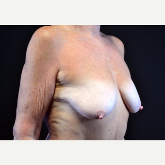 55-64 year old woman treated with Breast Implants before 3440911