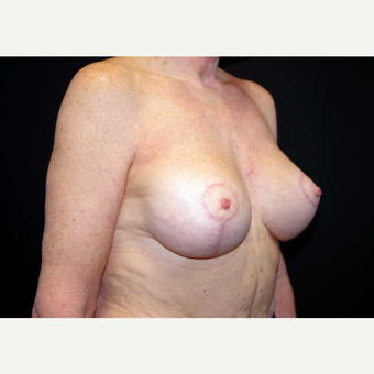 55-64 year old woman treated with Breast Implants after 3440911