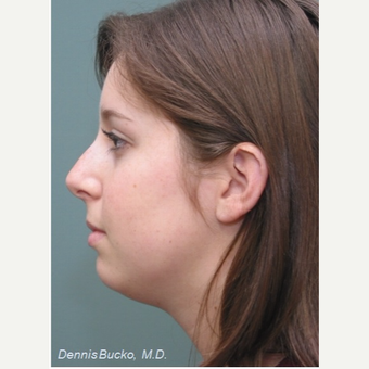 18-24 year old woman treated with Chin Implant before 3523463