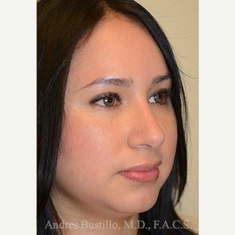 27 year old woman treated with Rhinoplasty after 3460916