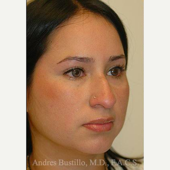 27 year old woman treated with Rhinoplasty before 3460916