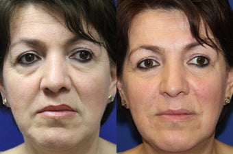 49yo, 2cc Juvederm to Nasolabial folds and Marionette lines before 1288923