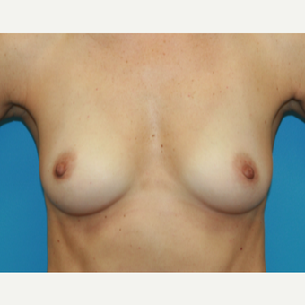 45 year old woman treated with Breast Augmentation before 3482713