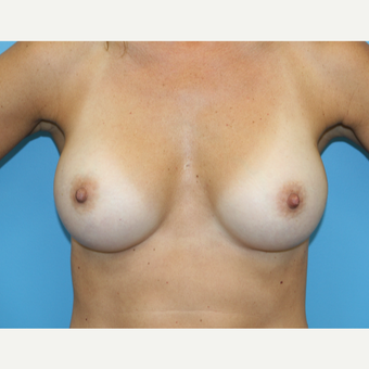 45 year old woman treated with Breast Augmentation after 3482713