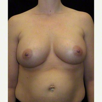 34 year old woman treated with Breast Augmentation after 3103653