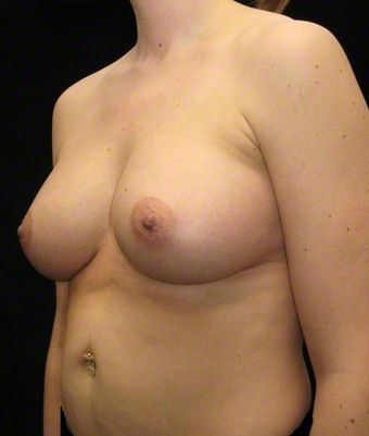 34 year old woman treated with Breast Augmentation 3103653
