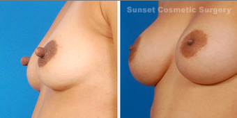 Nipple reduction and reshaping before 902704