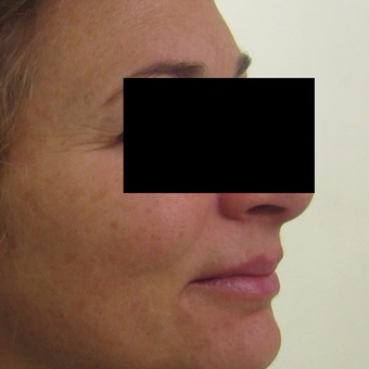 45-54 year old woman treated with Fraxel Laser before 3025463