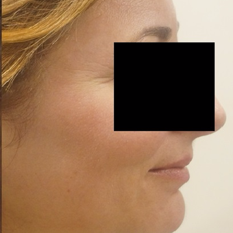 45-54 year old woman treated with Fraxel Laser after 3025463