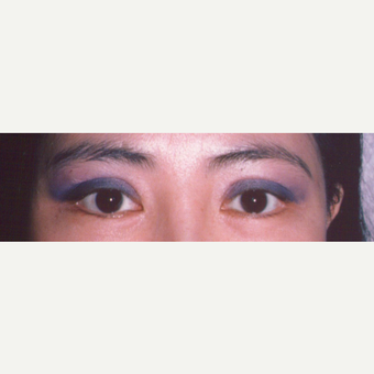 35-44 year old woman treated with Eyelid Surgery after 3544731