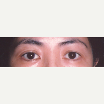 35-44 year old woman treated with Eyelid Surgery before 3544731