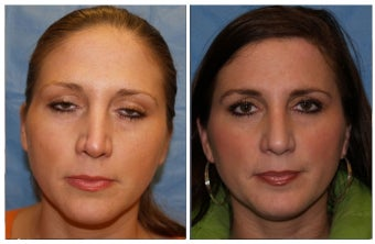 Revision Rhinoplasty before 1129895