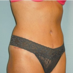 25-34 year old woman treated with Tummy Tuck after 3722302