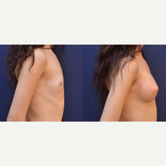 18-24 year old woman treated with Breast Augmentation before 3238845