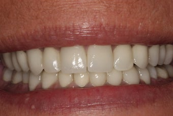Mouth Reconstruction 47 Year Old Woman 900638