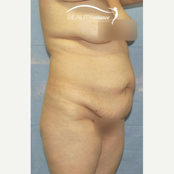Extended Tummy Tuck and BBL before 2857793
