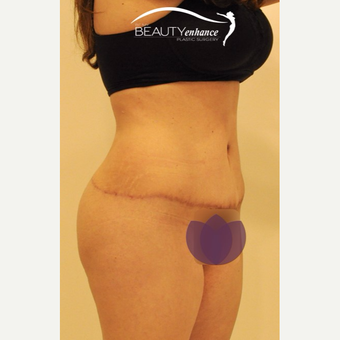 Extended Tummy Tuck and BBL after 2857793