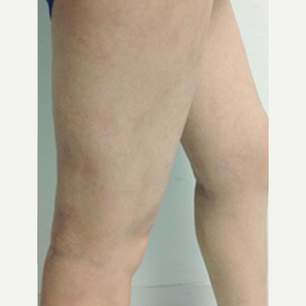 Sclerotherapy after 3164783