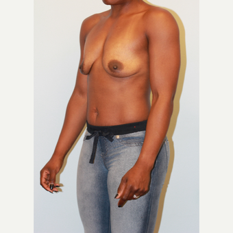 25-34 year old woman treated with Breast Implants before 3563895