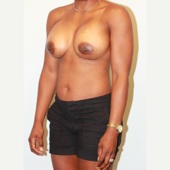 25-34 year old woman treated with Breast Implants after 3563895