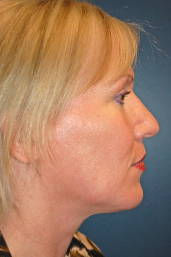 Nose Surgery after 925807