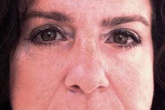 52 year old female treated with Restylane under her eyes after 1328564