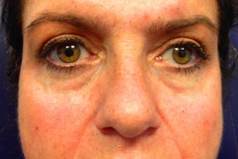 52 year old female treated with Restylane under her eyes before 1328564