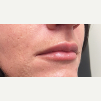 25-34 year old woman treated with Juvederm after 3698814