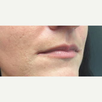 25-34 year old woman treated with Juvederm before 3698814