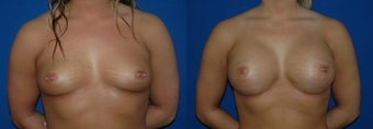 22 year old woman treated with Breast Augmentation before 2990479