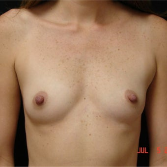 35-44 year old woman with Breast Augmentation