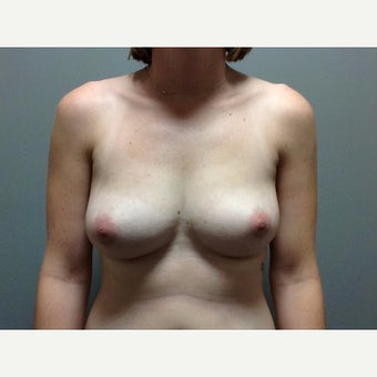 27 year old woman treated with Breast Reconstruction