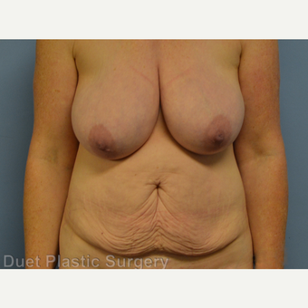 45-54 year old woman treated with Mommy Makeover before 3368072