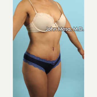 35-44 year old woman treated with Brazilian Tummy Tuck ( Lipo-Abdominoplasty) after 3659775