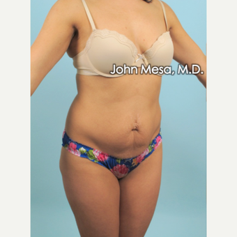 35-44 year old woman treated with Brazilian Tummy Tuck ( Lipo-Abdominoplasty) before 3659775