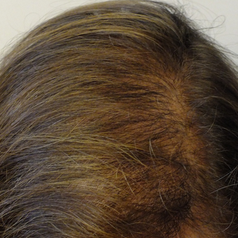 35-44 year old woman treated with PRP for Hair Loss after 2803068