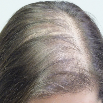 35-44 year old woman treated with PRP for Hair Loss before 2803068