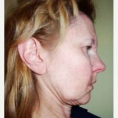 55-64 year old woman treated with Facelift before 3807304
