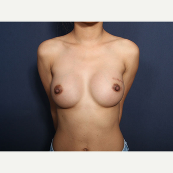 25-34 year old woman treated with Breast Augmentation (view 1 of 2) after 3129184